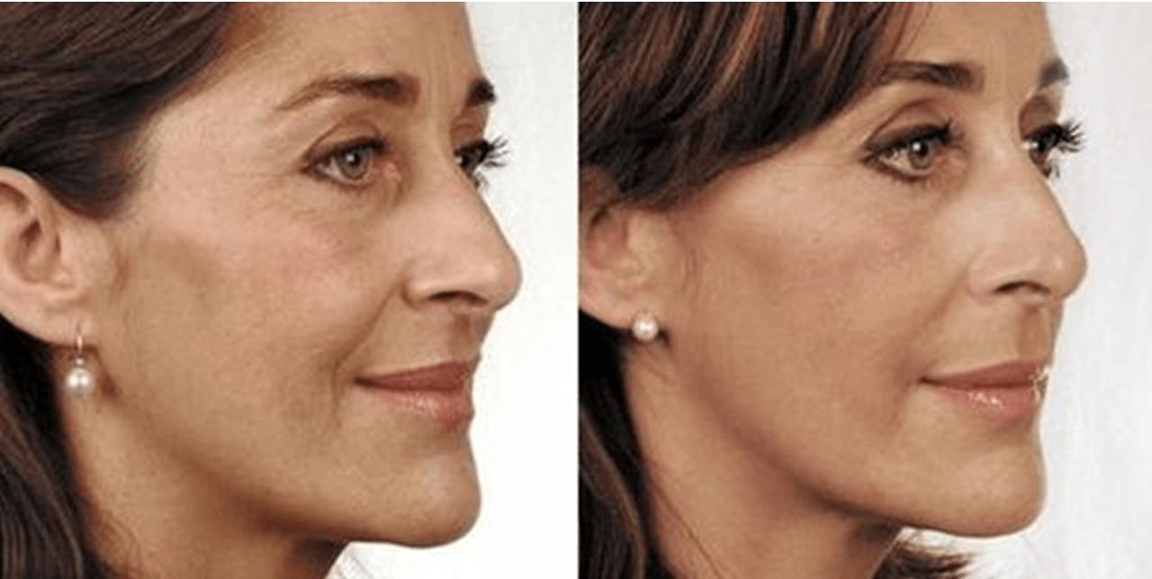 До и после биоревитализация гиалуроновой кислотой