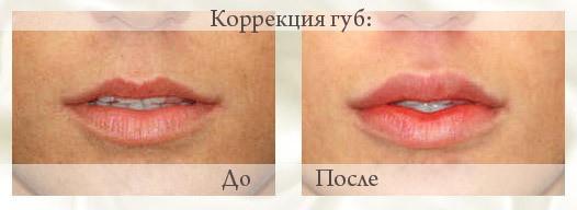 Губы до и после введения гиалуроновой кислоты