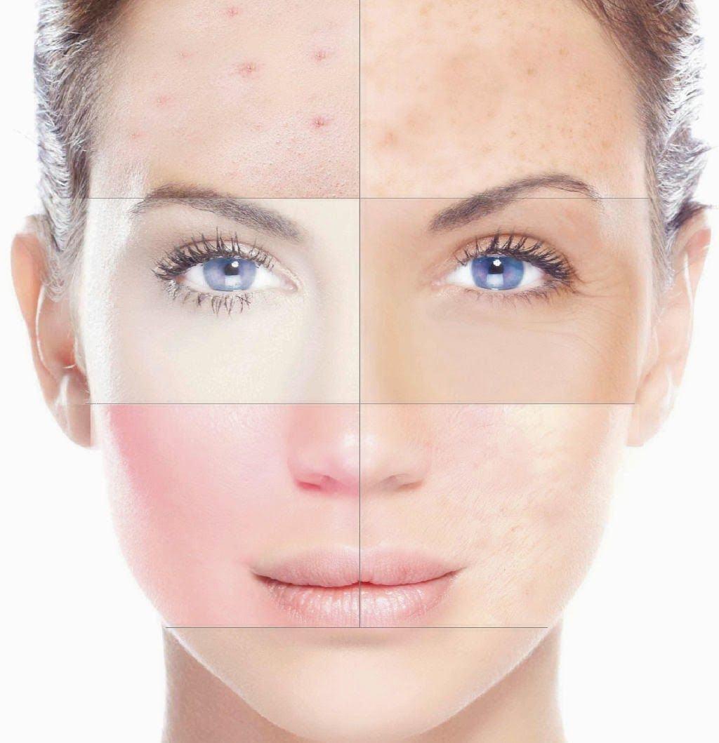 Маска для лица из белой глины для комбинированной кожи