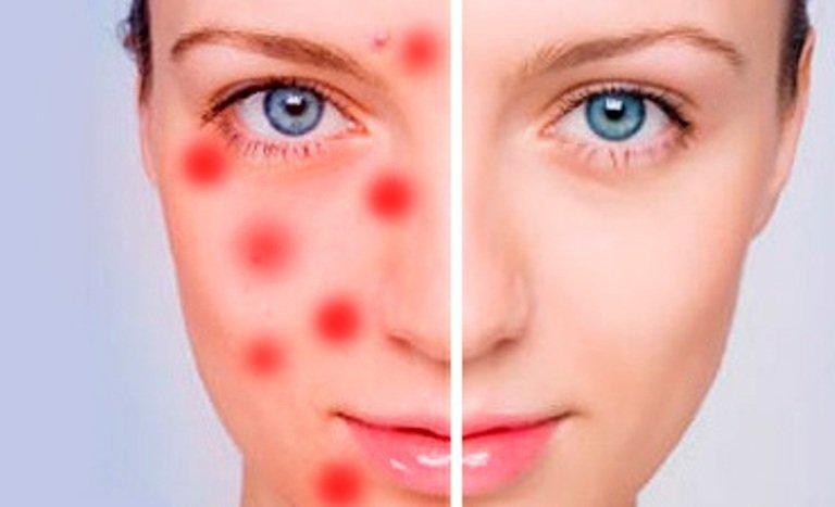 Успокаивающая маска из розовой глины для раздраженной и воспаленной кожи
