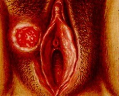 Венерические заболевание сифилис