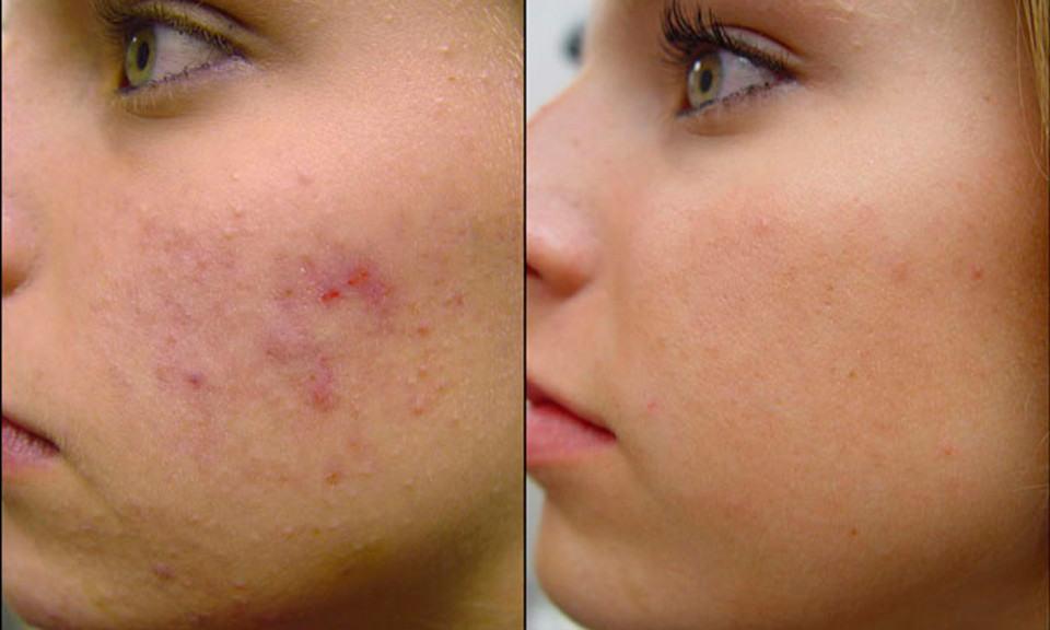маска для кожи после похудения