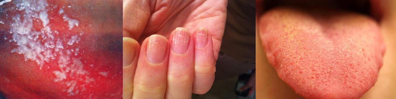 Хроническая молочница (кандидоз) на половых органах, во рту и на ногтях