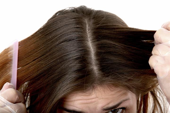 Маска из голубой глины против перхоти на волосах