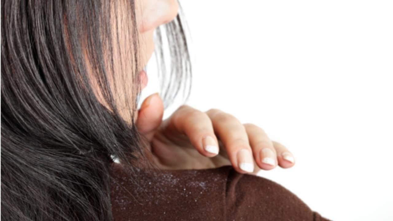 маска из глины против жирной перхоти