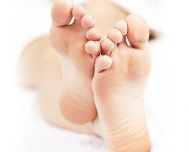 Трещины на пятках и ступнях, причины, лечение в домашних условиях народными средствами, крем и мазь от трещин на коже ног.