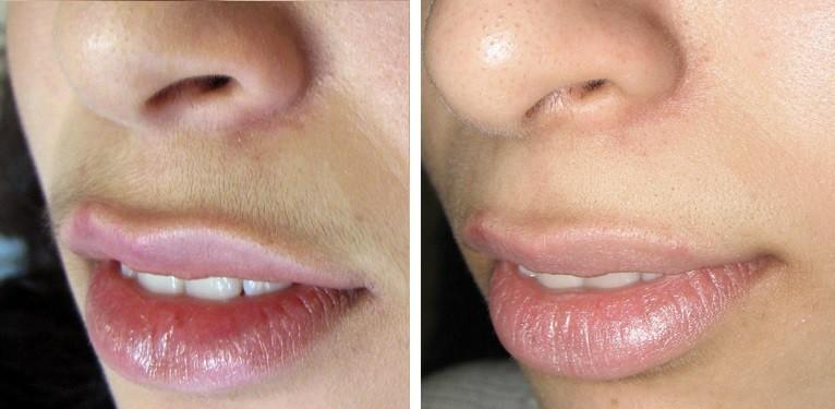 Удаление волос на верхней губе методом фотоэпиляции.