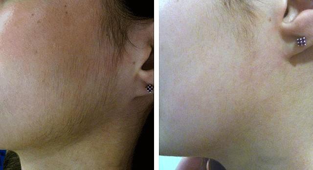 Удаление волос на лице при помощи фотоэпиляции до и после процедуры.