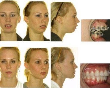Неправильный прикус зубов и челюсти у ребенка. Лечение и исправление проблемы брекетами. Фото