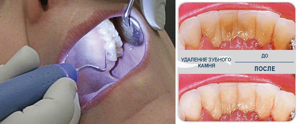 Профессиональное отбеливание зубов, снятие зубного камня и налета