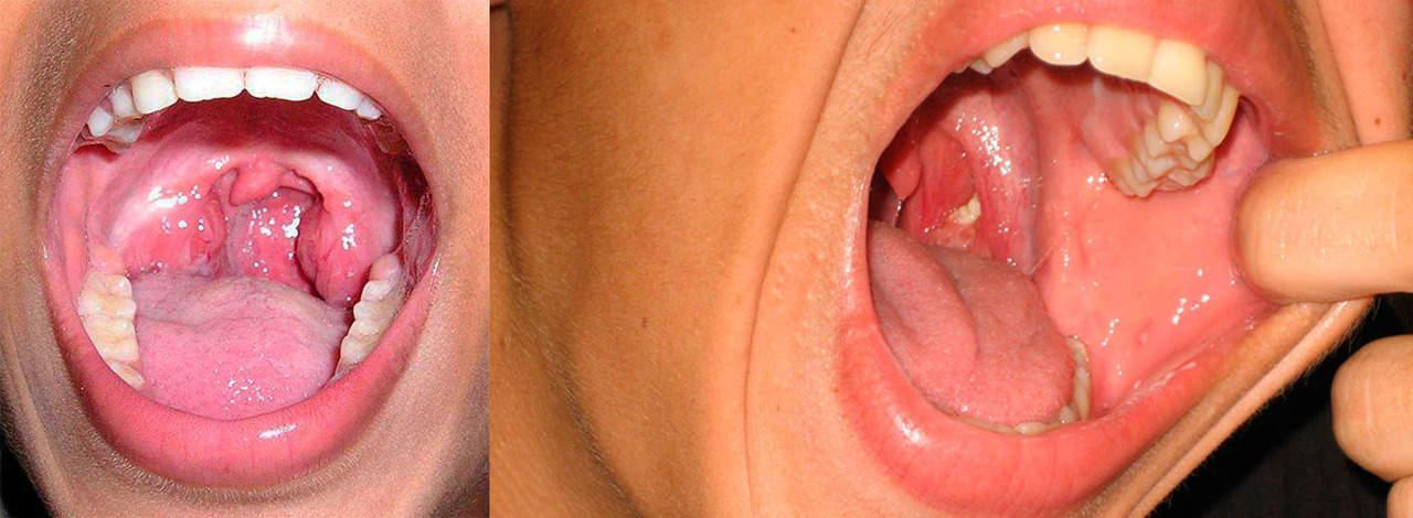 Ангина у детей: воспаление миндалин