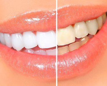 Отбеливание зубов в домашних условиях - лучшие способы. Лазерное и профессиональное отбеливание, ZOOM