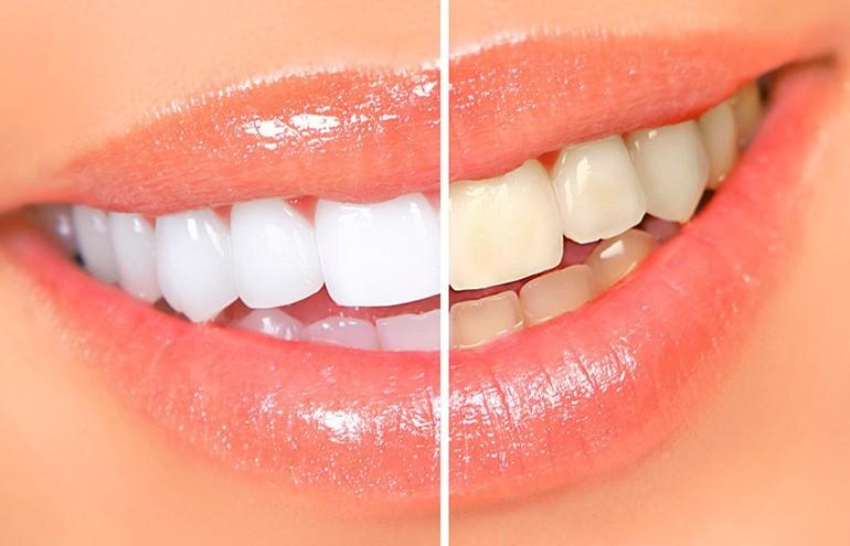 Отбеливание зубов при помощи геля и лампы