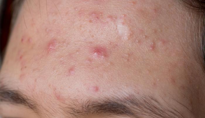Акне, угри, аллергическая сыпь