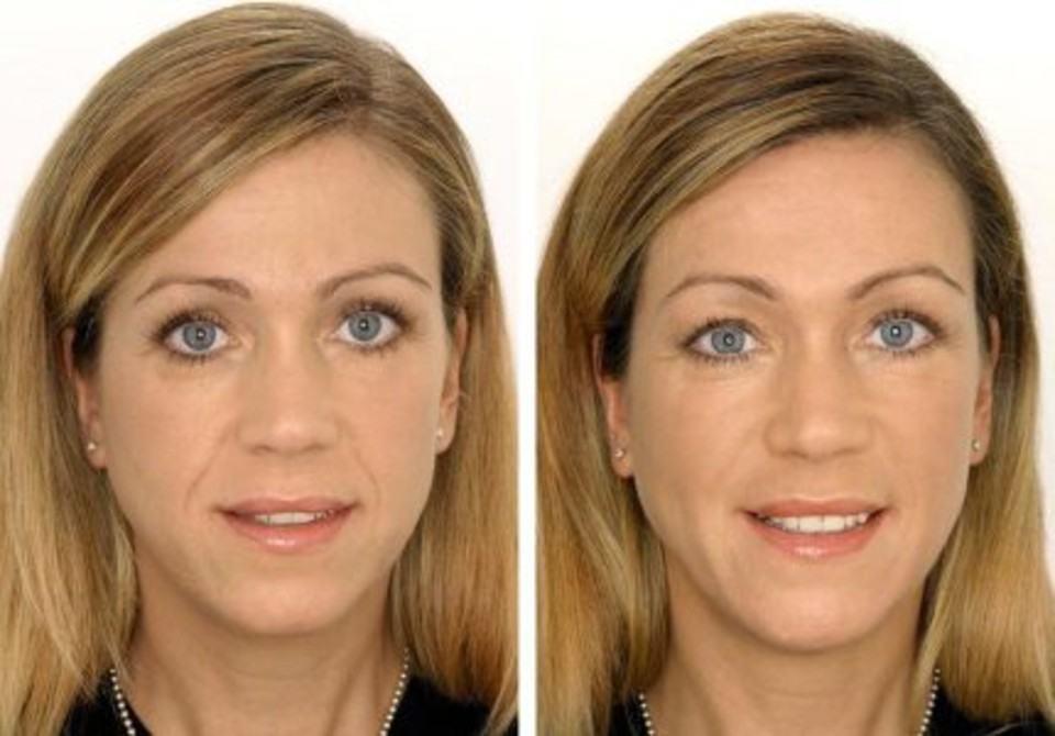 Пластика лица до и после звезды фото