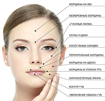 Контурная пластика лица - разглаживание морщин
