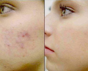 Как избавиться от угрей, прыщей и черных точек на лице и на носу в домашних условиях