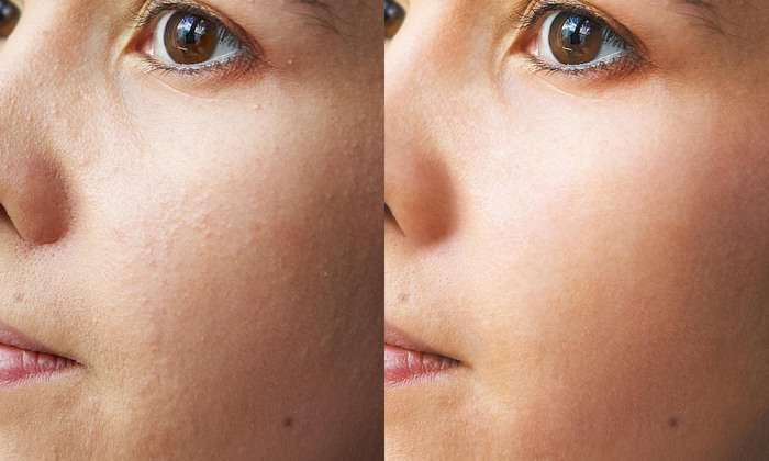 Ультразвуковая чистка кожи до и после
