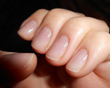 Ногти после наращивания гелем, фото., Восстановление в домашних условиях, укрепление, лечение