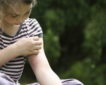 Средства защиты от укусов комаров: фумиратор, спрей, таблетки, спираль, свечи. Эффективные народные средства для дома и на природе
