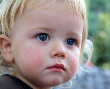 Диатез у детей на щеках и лице: симптомы, лечение, фото, профилактика в 1, 2 и 3 года. Видео