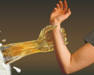 Пивной алкоголизм у мужчин и женщин - симптомы и признаки, лечение зависимости, видео
