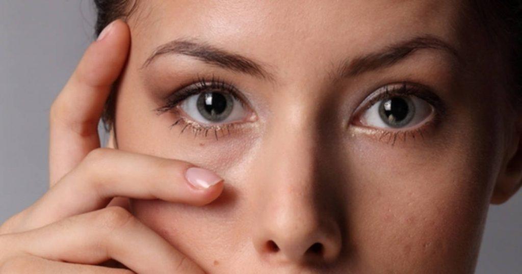 Девушка с синяками под глазами